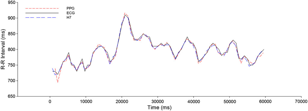 Comparison of Heart-Rate-Variability Recording With