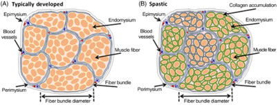 Skeletal Muscle Adaptations and Passive Muscle Stiffness in